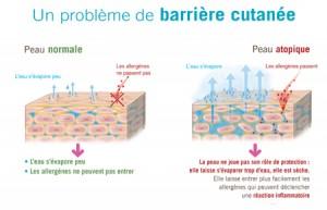 eczema-probleme-barriere-cutanee